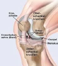 Die heftigen Schmerzen bei der Osteochondrose des Brustteiles