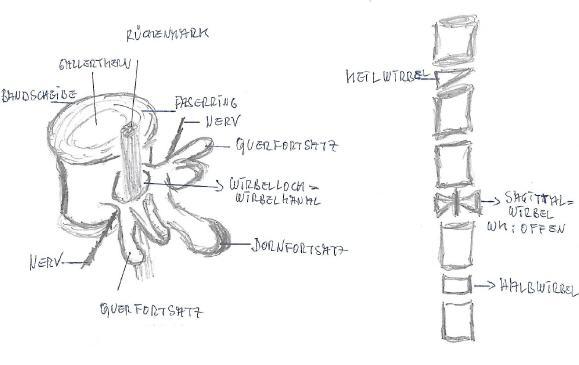 Keilwirbelbildung - Hemivertebra
